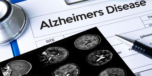 Marketing Death and Alzheimer's Disease